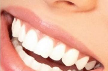 Красивые зубы – признак культуры, здоровья, нормы.