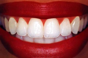 Дырка в зубе